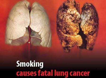 si queres dejar de fumar..! mira esto